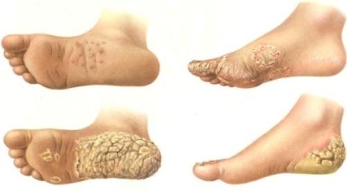 Профессиональные заболевания кожи: какие относятся