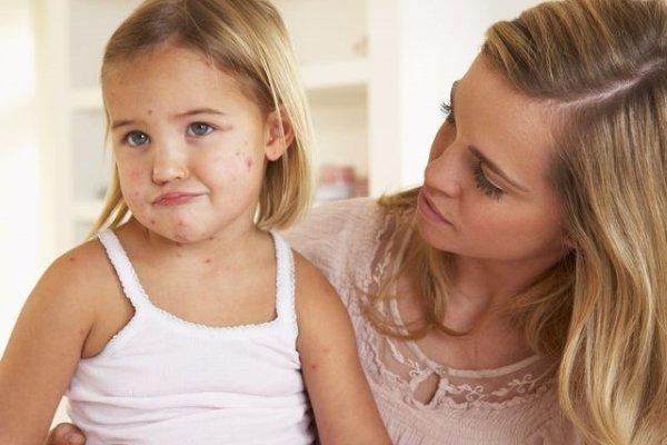 Больничный при ветрянке у детей и взрослых: на сколько дней дают